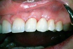 mistet skall av tann skallfasett